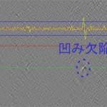処理画像_凹み(噛み込み)